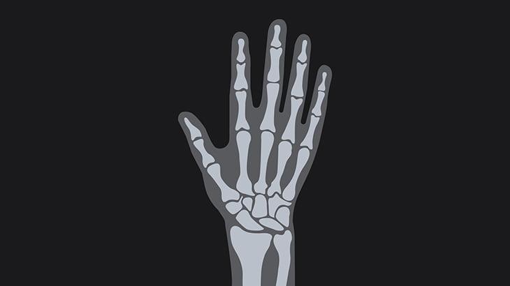 【微閲覧注意】友人と指を引っ張り合って遊んでいた男、中指折れてしまう(動画)