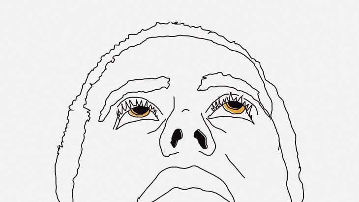【閲覧注意】この男性の鼻の中、ウジ虫だらけ・・・(動画)
