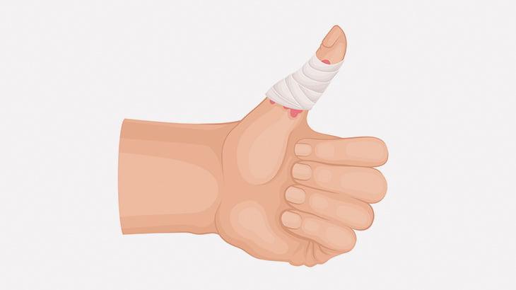 【閲覧注意】縦にパカッと割れてしまった親指の手術映像